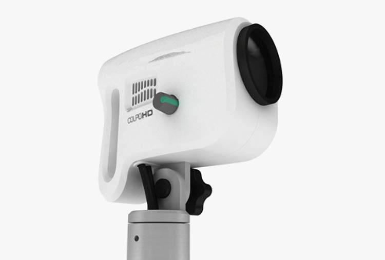 Video Colposcopes